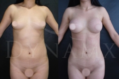 female-4