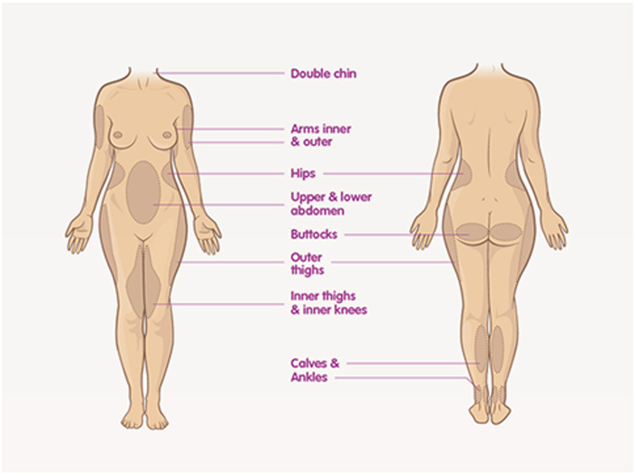 liposuction-targeted-areas