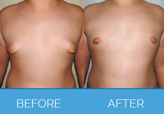 Male Chest Reduction - Gynecomastia - Before and After