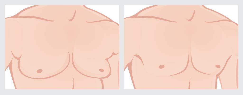 Chest Fat Removal Procedure with Liposuction