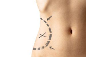 Female waistline about to perform vaser liposuction