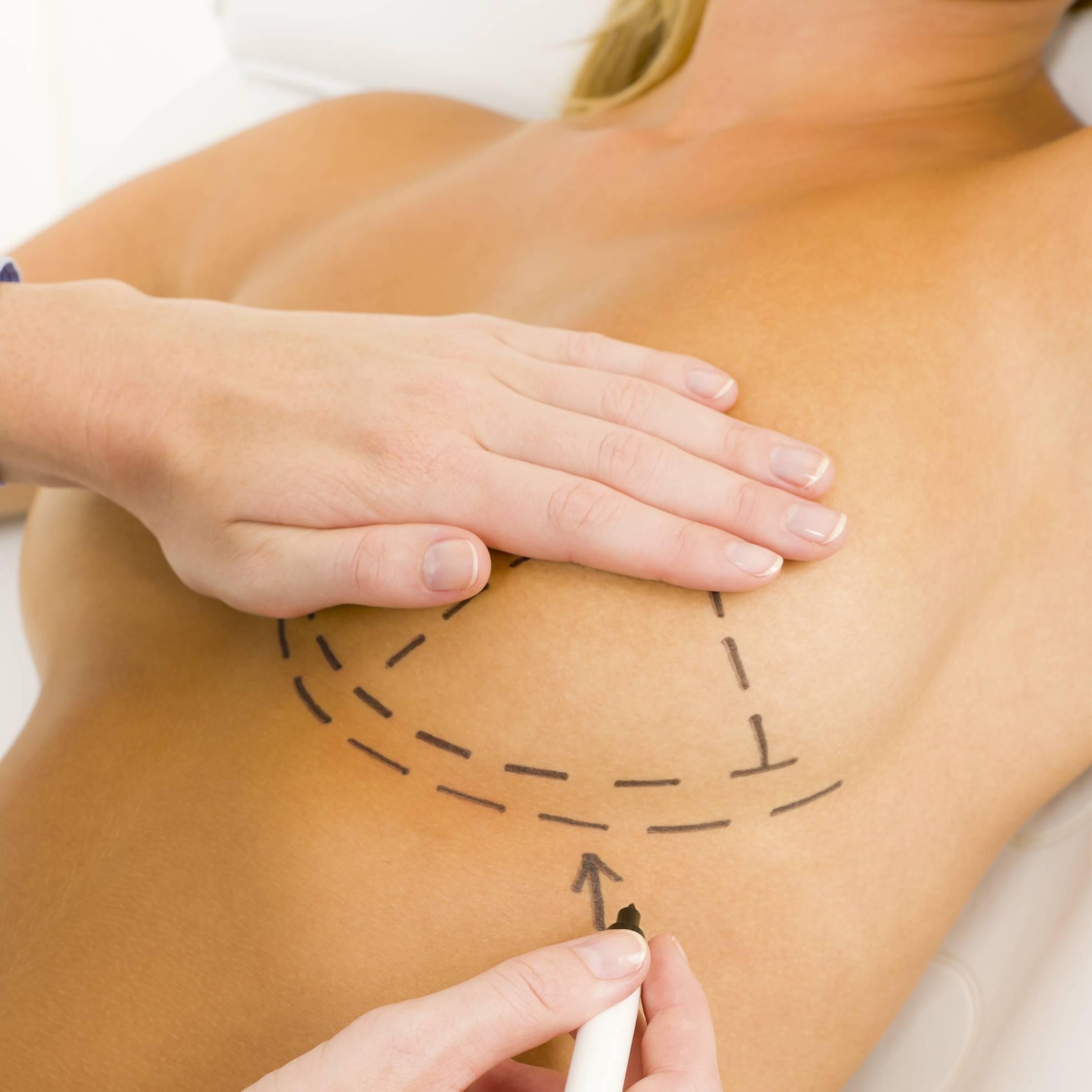 Breast Fat Transplant 87